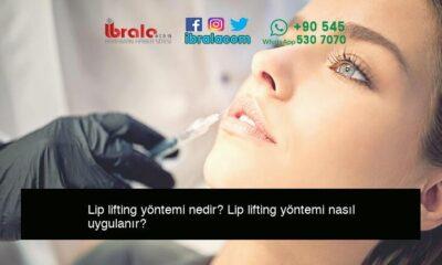 Lip lifting yöntemi nedir? Lip lifting yöntemi nasıl uygulanır?