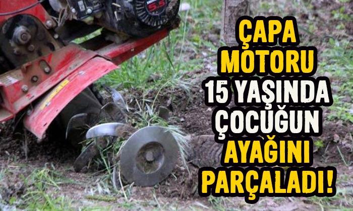 Çapa motoru 15 yaşındaki çocuğun ayağını parçaladı!