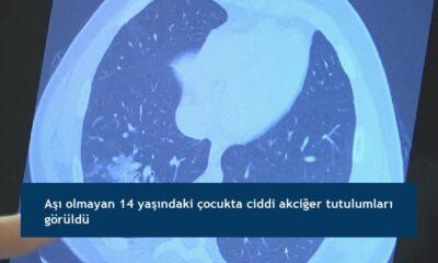 Aşı olmayan 14 yaşındaki çocukta ciddi akciğer tutulumları görüldü